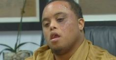 "Man with Down Syndrome Horribly Beaten by Police for ""Bulge in Pants"" That Was Only a Colostomy Bag!"
