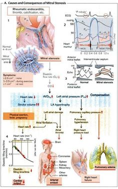 mitral stenosis - overview taken from Color Atlas of Pathophysiology By Stefan Silbernagl #cardiology
