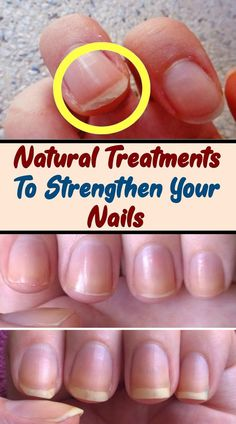 Hands are like a business card, so you need to know how to take care for them. Don't pay attention only for the skin, but for your nails also. Here are 6 natural treatments to strengthen your nails and help you to get a healthy and beautiful ones Hair Loss Cure, Oil For Hair Loss, Prevent Hair Loss, Healthy Nails, Get Healthy, Natural Treatments, Natural Remedies, Ongles Forts, Brittle Nails