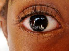Que ojo
