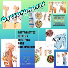 La osteoporosis es una enfermedad que se puede controlar en forma segura, efectiva, aumentando la densidad ósea, mejorando la fragilidad ósea y el riesgo de fractura en Bogotá. Visítenos en la Clínica de Artrosis y Osteoporosis www.clinicaartrosis.com PBX: +571-6836020, Teléfono Movil: +57-300-2597226 en Bogotá - Colombia.