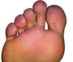 karbonat ...ayak mantarı tedavisi