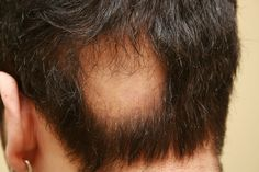... New Hair Loss Treatments ...  !   STOP HAIR LOSS AND STOP GOING BALD !