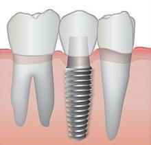 dentista, odontologia, implante dentario