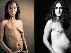 """O fotógrafoDavid Jay mostra em sua campanha a maneira que fica o corpo de uma mulher, após um tratamento de câncer. Para ele, é necessário fazer um tipo de trabalho como este. """"Eu não vou mostrar apenas metade da história – que tudo vai ficar bem e essas meninas têm câncer de mama"""", afirma. Confira...<br /><a class=""""more-link"""" href=""""https://catracalivre.com.br/geral/cidadania/indicacao/cancer-de-mama-mulheres-mostram-o-corpo-em-ensaio-fotografico/"""">Continue lendo »</a>"""