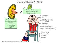 Glomerulonephritis Glomerulonephritis is a type of kidney disease in which the part of your kidneys that helps filter waste and fluids from the blood is damaged. Glomerulonephritis may be caused by problems with the body's immune system. Often, the exact cause of glomerulonephritis is unknown.