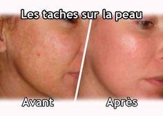 Beaucoup souffrent des taches brunes qui apparaissent sur la peau du corps ou du visage ! Venez découvrir nos astuces pour vous en débarrasser.