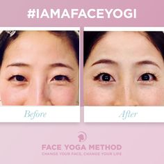 Face Yoga Method, Face Yoga Exercises, Droopy Eyelids, Eye Lift, Under Eye Bags, Change Your Life, Crows Feet, Natural Eyes, Human Nature