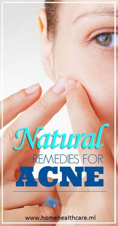 Natural Remedies for Acne - Effective and Permanent Cure