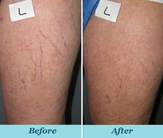 Orange County Spider Veins | Vein Treatment in Irvine, CA