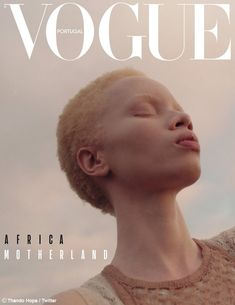 Thando Hopa is a SouthAfrican model and albinism activist. People living with albinism face tremendous problems, including murder, in many African countries. The post Thando Hopa, model from Johannesburg appeared first on Didier J. Vogue Magazine Covers, Fashion Magazine Cover, Fashion Cover, Vogue Covers, Capas Vintage Da Vogue, Vogue Vintage, Édito Vogue, Vogue Fashion, Urban Fashion