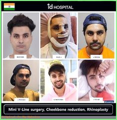 Male facial contouring surgery in Korea. Men can also consider facial contouring surgery to get more defined chin, jaw and cheekbones. V Line Surgery, Korean Plastic Surgery, Plastic Surgery Before After, Rhinoplasty Before And After, Rhinoplasty Surgery, V Lines, Women Life, Contour, Facial