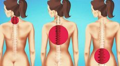 Press These 2 Points Near Your Hips To Eliminate Low Back Pain Hip Pain Leg Pain Sciatica Pain And Thigh Exercises, Stretching Exercises, Sciatica Exercises, Sciatica Pain, Leg Pain, Improve Posture, Low Back Pain, Fitness Inspiration, Pilates