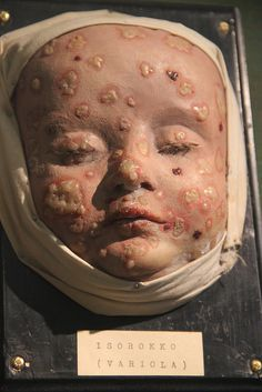 Infant Wax Moulage IV by Curious Expeditions, via Flickr