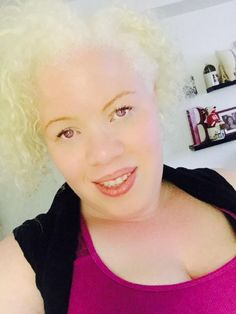On black pride and the skin we're in Albino African, Albinism, Black Pride, Black Power, Black History Month, Black People, Celebrities, Beauty, Beautiful
