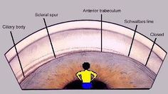 Protrusion of sclera into anterior chamber. Attached to ciliary body posteriorly and trabecular meshwork anteriorly. Medical Art, Medical Humor, Eye Anatomy Diagram, Opthalmic Technician, World Sight Day, Eye Facts, Vision Eye, Eye Doctor, Optician