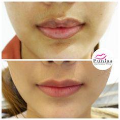 #Punisaclinic #ศัลยกรรม #ปาก #ศัลยกรรมปาก #ปากบาง #ปากกระจับ #ปากปีกนก  #Beauty #Number1 #Lips #LipReduction #LipSurgery #Professional #Lip #Reduction #Surgery #Thailand #plasticsurgery #lipreductionsurgery #thailand #doctorthinlips#Punisaclinic #lipsurgery #lipreduction#lipreductionsurgery #asianlips #plasticsurgeons#plasticsurgery #Thailandsurgery Lip Surgery, Body Modifications, Plastic Surgery, Eye Makeup, Lips, Body Mods, Makeup Eyes, Eye Make Up