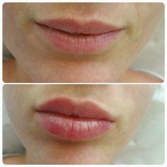 Lip Fillers Glasgow - http://dermalfillerclinic.co.uk/lip-fillers-glasgow/