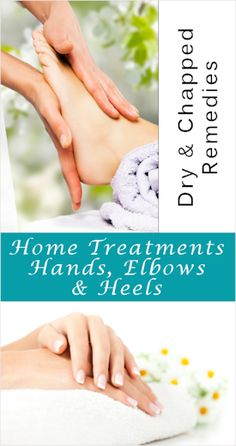 Dry & Chapped Hands and Heels  Balm: 1 cup Cocoa Butter  1 cup Shea Butter  1/2 cup Jojoba Oil  1/4 cup Beeswax  Add fragrance, 1 tbl Mint/ Lavendar  Heat in oven at 180°F for two hours or until all ingredients are melted.  Stir very well then pour into heat proof jars with mouths large enough for hand to get in. Once cool, cover with lids and let set fully.