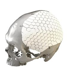 3ders.org - Swedish company OssDsign receives FDA clearance for 3D printed cranial implants   3D Printer News & 3D Printing News
