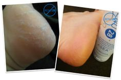 RENU 28 is safe to use on most of your trouble spots. Including cracked heels!