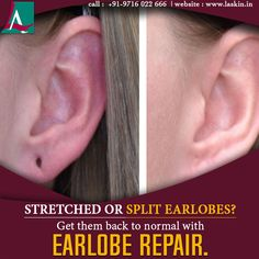 Heavy ornaments can increase the size of your earlobe piercing over time which may eventually start looking unattractive because of its stretched or split look. Call to get your earlobes repaired today. LikeShow More ReactionsCommentShare Dandruff Solutions, Aesthetic Clinic, Piercing, You Got This, Ear, How To Get, Ornaments, Piercings, Ears