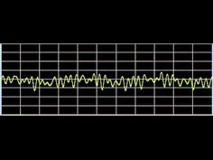 Hypertension (High Blood Pressure) - Rife Frequencies - YouTube