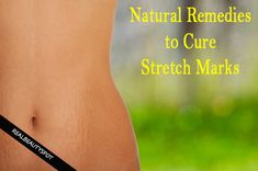 Natural Remedies to Cure Stretch Marks - ♥ Real Beauty Spot ♥