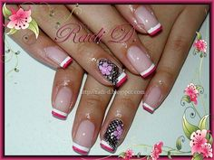 Two colored french - Nail Art Gallery Colored French Nails, French Nail Art, Lace Nail Art, Lace Nails, Types Of Nails, Nail Art Galleries, Cool Nail Designs, Nails Magazine, Mani Pedi