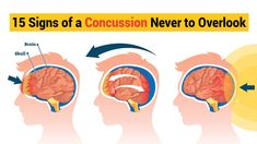 Fortunately, the human skull is usually strong enough to protect your brain when you bump your head. You can still get a concussion, also called a mild traumatic brain injury, from being hit in the head or being violently shaken. Do you know the signs and symptoms to look for if you or a loved one has a concussion?