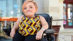 Stella Young dies aged 32