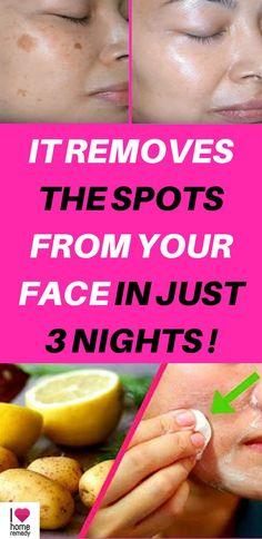 The sun may represent a big problem for our skin especially on the face, because if it's exposed to sunlight for a long time, it can lead to the appearance of spots in many cases. However, there is a wide variety of products that promise to remove spots, and although some may be effective, it is important to know that the chemical in this type of product only cause serious damage to our health.  But in this video remedies are completely natural.