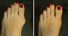 3 Simple, But Effective Ways To Get Rid Of Hallux Valgus – Without Going Under The Knife