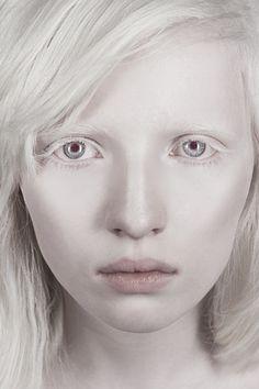 russian albino model nastya kumarova