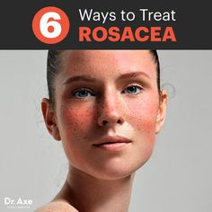 Rosacea Treatment: 6 Natural Ways to Heal Your Skin - Dr. Axe