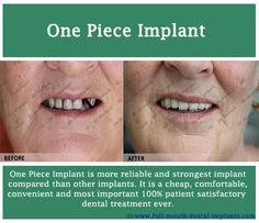 Before and After photos of #One Piece Implant case performed by #Dr.motiwala http://full-mouth-dental-implants.com/low-cost-dental-implants.php