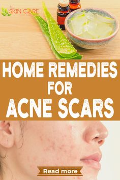Do you have the problem of acne scars? Here are natural home remedies to treat the condition.  Read more about acne scars at theskincarereviews.com #acne #acnescars #acnemarks Home Remedies For Acne, Skin Care Remedies, Acne Remedies, Natural Remedies, Dark Spots On Skin, Acne Spots, Best Acne Products, Skin Products, Clear Skin Tips