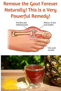 Remedies For Arthritis The gout is a very complicated form of the arthritis that is usually overlooked by those people who have not experienced it ever, and it is covered in mystery. This health condition can be so unbearable for those people who have it. Arthritis Hands, Yoga For Arthritis, Juvenile Arthritis, Rheumatoid Arthritis Treatment, Types Of Arthritis, Arthritis Exercises, Natural Remedies For Arthritis, Natural Cures, French Tips