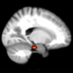 Innovative 'brain prosthesis' could help with memory loss