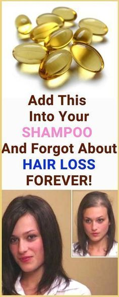 add this into Your Shampoo and Forgot about Hair loss Forever Home Remedies For Hair, Hair Loss Remedies, Vitamine E Capsules, Natural Beauty Tips, Natural Hair Styles, Oil For Hair Loss, Hair Loss Shampoo, Hair Lotion, Prevent Hair Loss