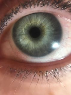 True summer eye