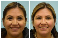 Hispanic woman is shown before and two weeks after two syringes of fillers placed around her eyes and her jawline.This Hispanic woman is shown before and two weeks after two syringes of fillers placed around her eyes and her jawline. Facial Fillers, Dermal Fillers, Botox Under Eyes, Under Eye Fillers, Hyaluronic Acid Fillers, Botox Before And After, Botox Cosmetic, Hispanic Women, Skin Resurfacing