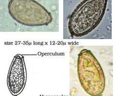 diabetes mellitus tipo 2 resultados de microbiología quizlet