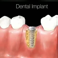 Get a better ideas about Oral hygiene tips. Dental Hygienist Jobs, Dental Hygiene, Dental Health, Teeth Implants, Dental Implants, Implant Dentistry, Dental Videos, Dental Life, Health