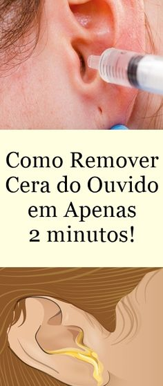 Remover Cera, Health And Beauty Tips, How To Remove, How To Make, Rock N Roll, Natural Health, Beauty Hacks, Medicine, Health Fitness