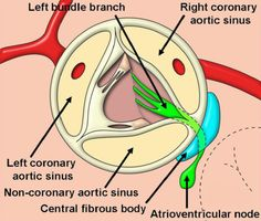 Anatomy of the aortic valvar complex and its implications for transcatheter implantation of the aortic valve. - Google Search