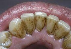 10 простых способов легко удалить зубной камень без визита к зубному врачу! – В РИТМІ ЖИТТЯ