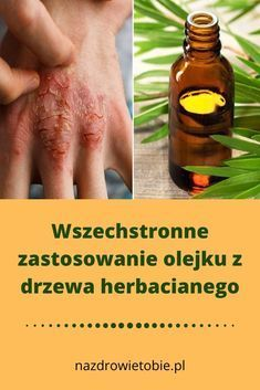 Awesome Health remedies information are offered on our internet site. Take a look and you wont be sorry you did. Healthy Beauty, Health And Beauty, Good Habits, Health Remedies, Detox, Herbalism, Improve Yourself, Life Hacks, Beauty Hacks