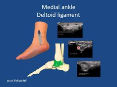 Ankle & Foot Scanning Techniques