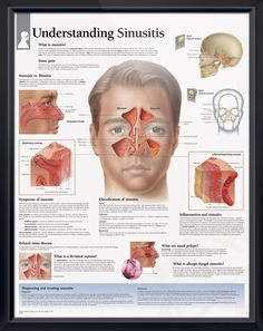 Understanding Sinusitis anatomy poster defines various sinus disorders, including pain, inflammation, nasal polyps and deviated septum. Otolaryngology chart for doctors and nurses.